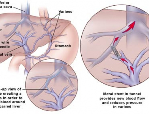 Delicate Procedures to Stop Variceal Bleeding