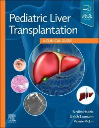 Pediatric Liver Transplantation: A Clinical Guide